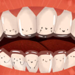 Cartoon image of Invisalign clear aligners over smiling teen teeth in San Antonio, TX
